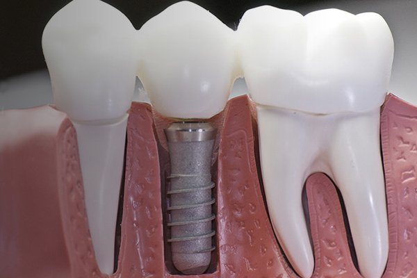 dental-implant-centre-flip.jpg